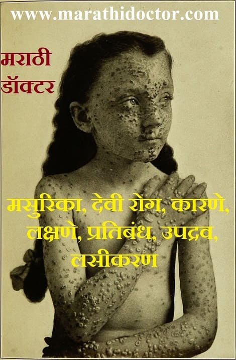 smallpox in marathi language what is meaning of smallpox in marathi language smallpox marathi name smallpox symptoms in marathi smallpox disease meaning in marathi smallpox disease in marathi smallpox in
