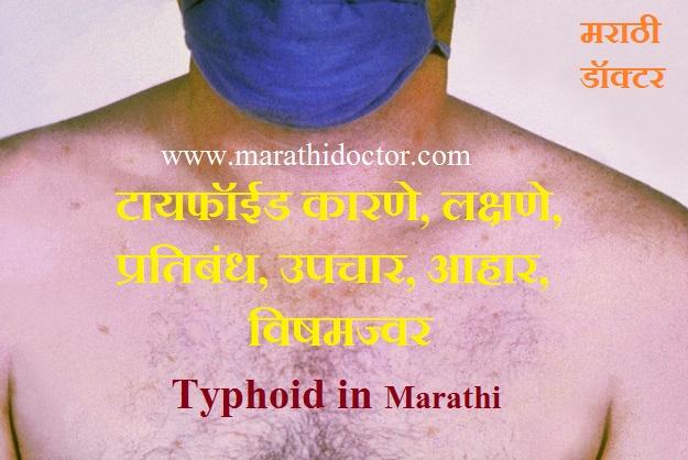 Typhoid in Marathi, Symptoms of Typhoid in Marathi, Typhoid Fever in Marathi, Widal Test, Vishamjwar