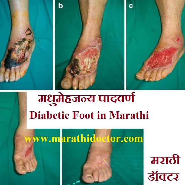 मधुमेहजन्य पादवर्ण, डायबेटीक फुट ची सर्व माहिती, Diabetic Foot in Marathi, मधुमेहजन्य पाद व्रण होण्याची कारणे, लक्षणे, प्रतिबंध, उपचार