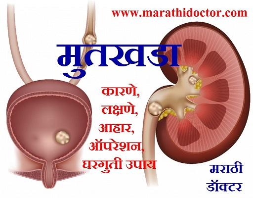 kidney stone in marathi, kidney stone treatment at home, kidney stone diet chart in marathi