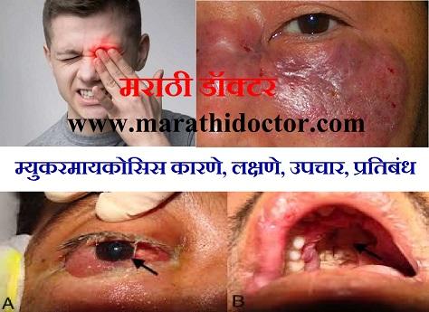 म्युकरमायकोसिस कारणे, लक्षणे, उपचार, प्रतिबंध, Mucormycosis in Marathi