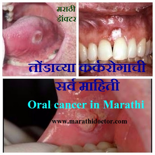 symptoms of mouth cancer in marathi,