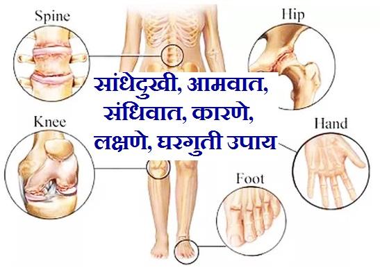 सांधेदुखी, आमवात, संधिवात, Meaning of Arthritis in Marathi, joint pain in marathi, arthritis in marathi, rheumatoid arthritis in marathi, gout in marathi, meaning of gout in marathi, what is gout in marathi, sandhivata in marathi, Symptoms of Sandhivat in Marathi,